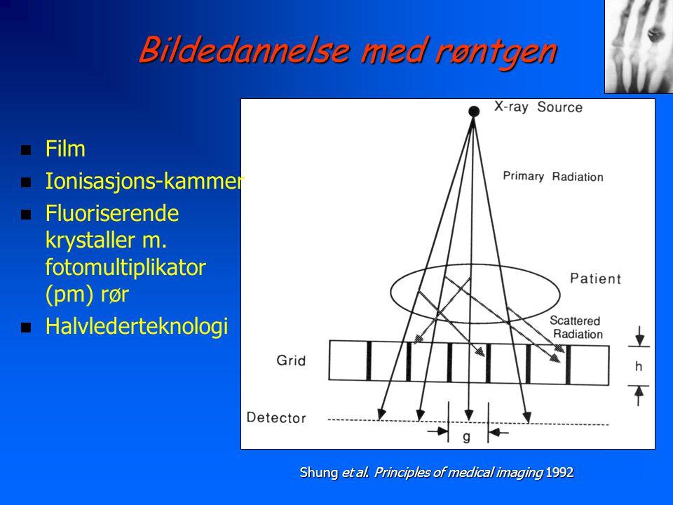 Bildedannelse med røntgen