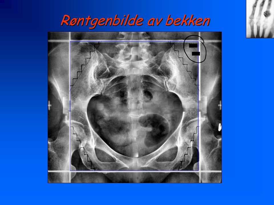 Røntgenbilde av bekken