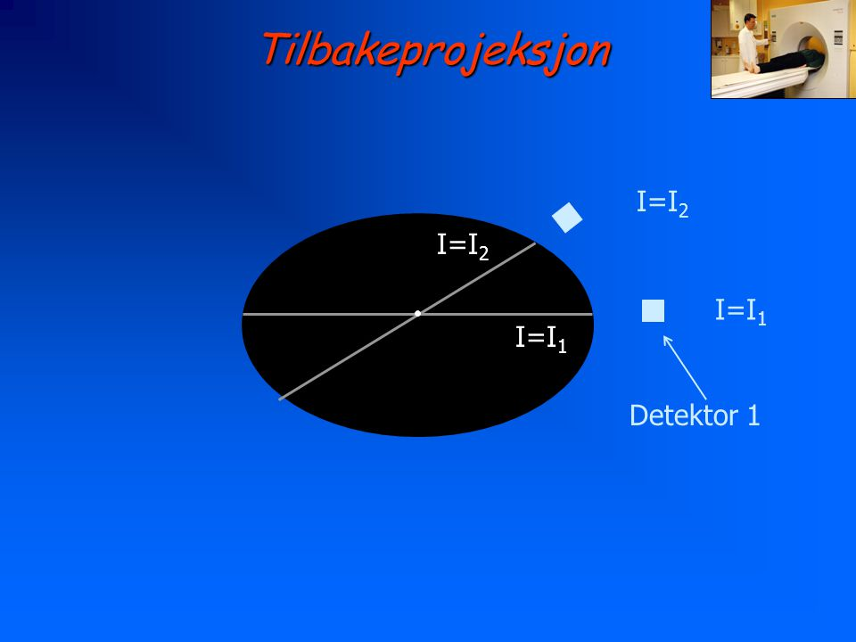Tilbakeprojeksjon I=I2 I=I2 I=I1 I=I1 Detektor 1