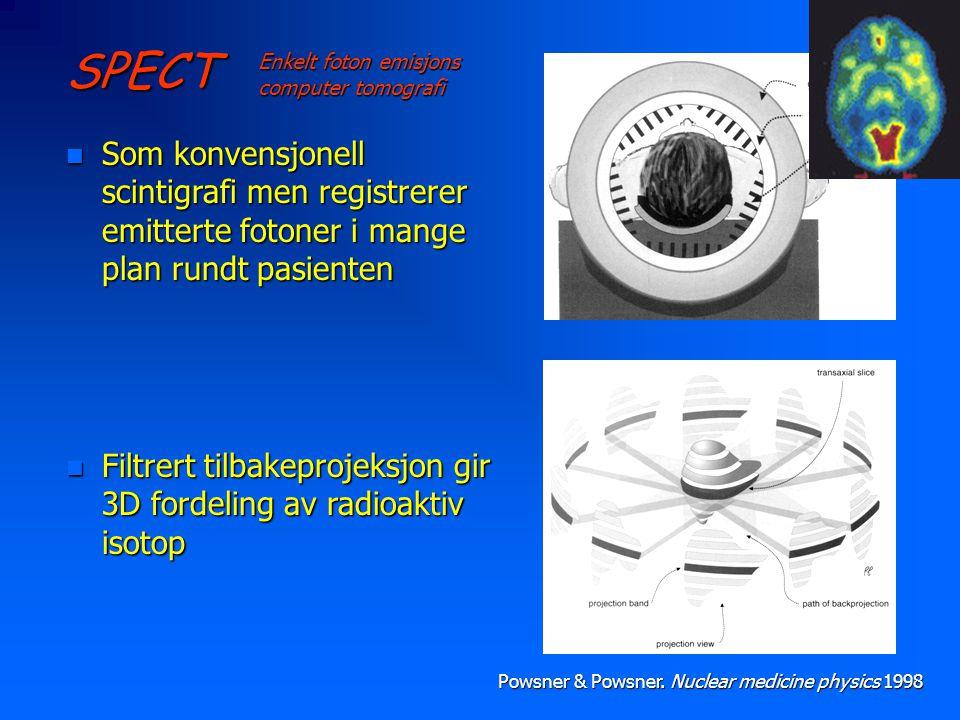 SPECT Enkelt foton emisjons computer tomografi. Som konvensjonell scintigrafi men registrerer emitterte fotoner i mange plan rundt pasienten.