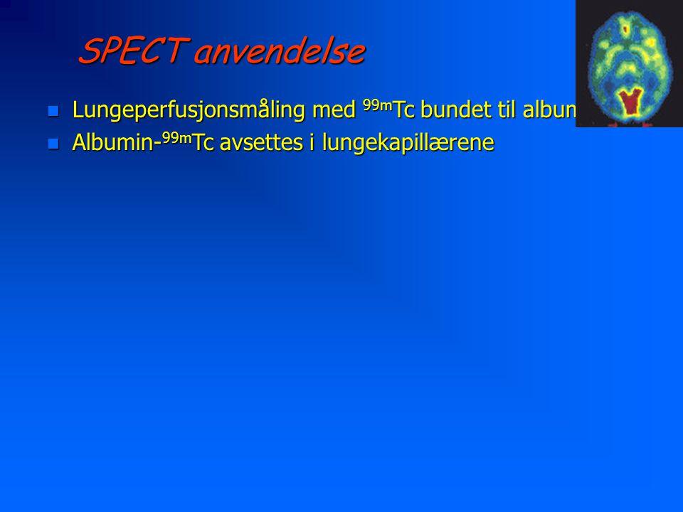 SPECT anvendelse Lungeperfusjonsmåling med 99mTc bundet til albumin
