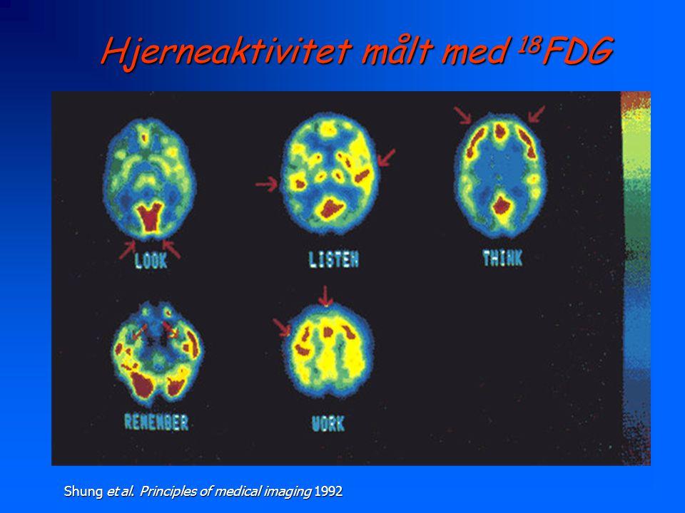 Hjerneaktivitet målt med 18FDG