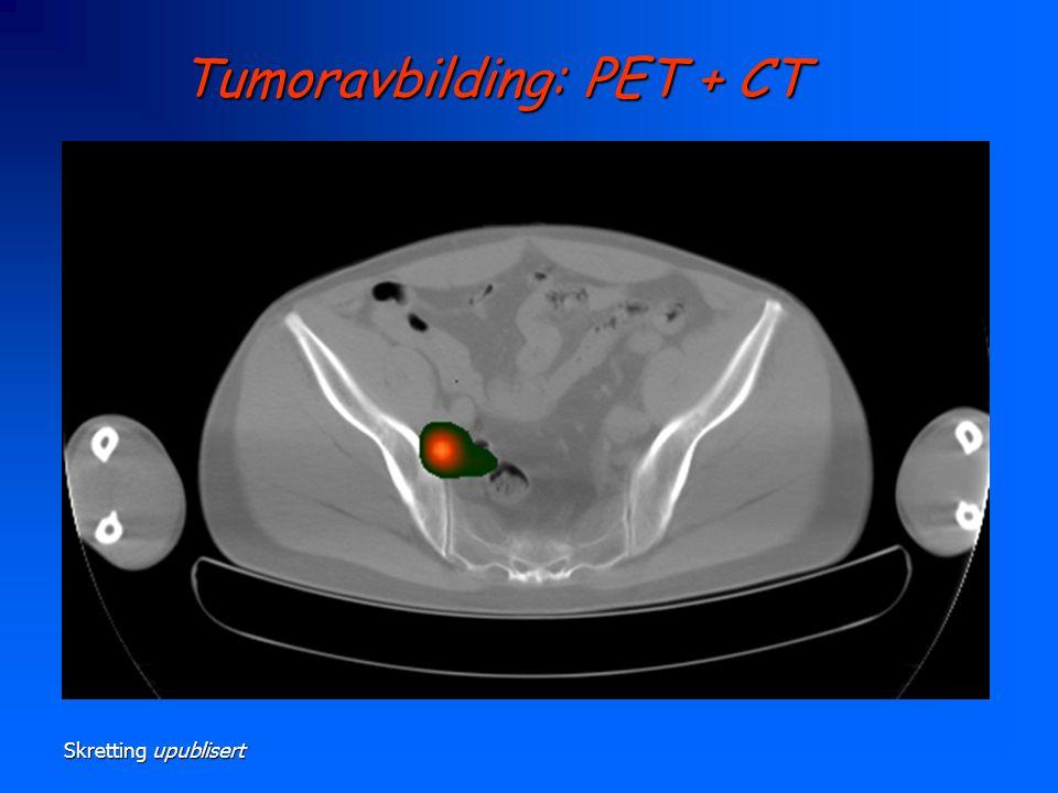Tumoravbilding: PET + CT
