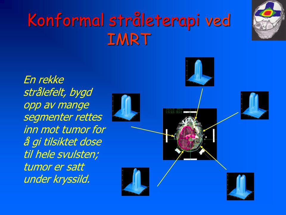 Konformal stråleterapi ved IMRT