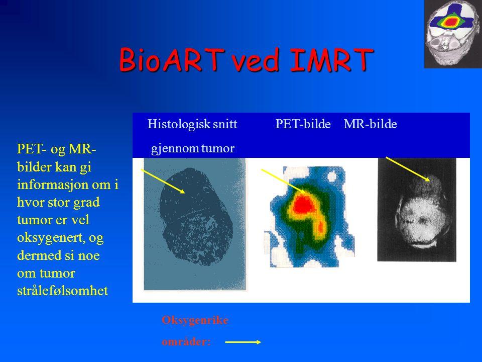 BioART ved IMRT Histologisk snitt PET-bilde MR-bilde. gjennom tumor.