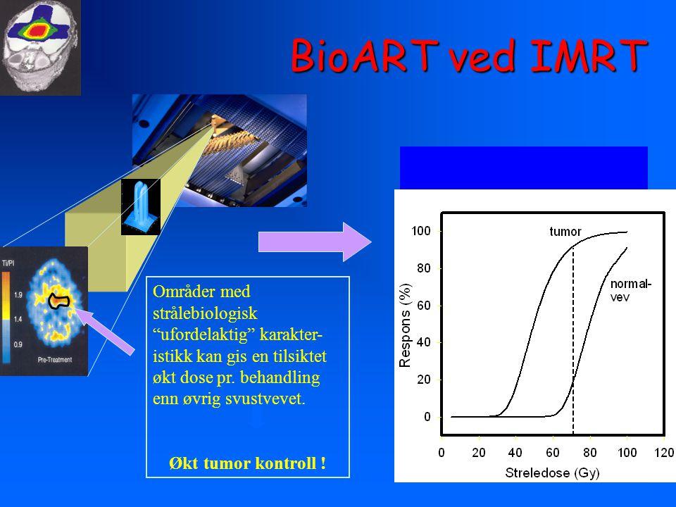 BioART ved IMRT Områder med strålebiologisk ufordelaktig karakter-istikk kan gis en tilsiktet økt dose pr. behandling enn øvrig svustvevet.