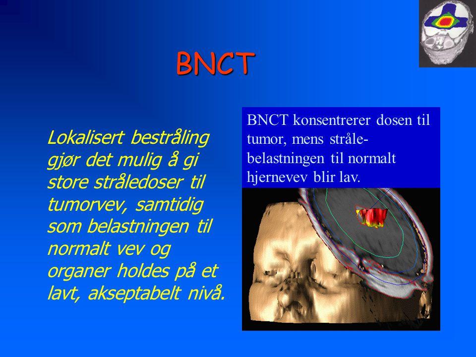 BNCT BNCT konsentrerer dosen til tumor, mens stråle-belastningen til normalt hjernevev blir lav.