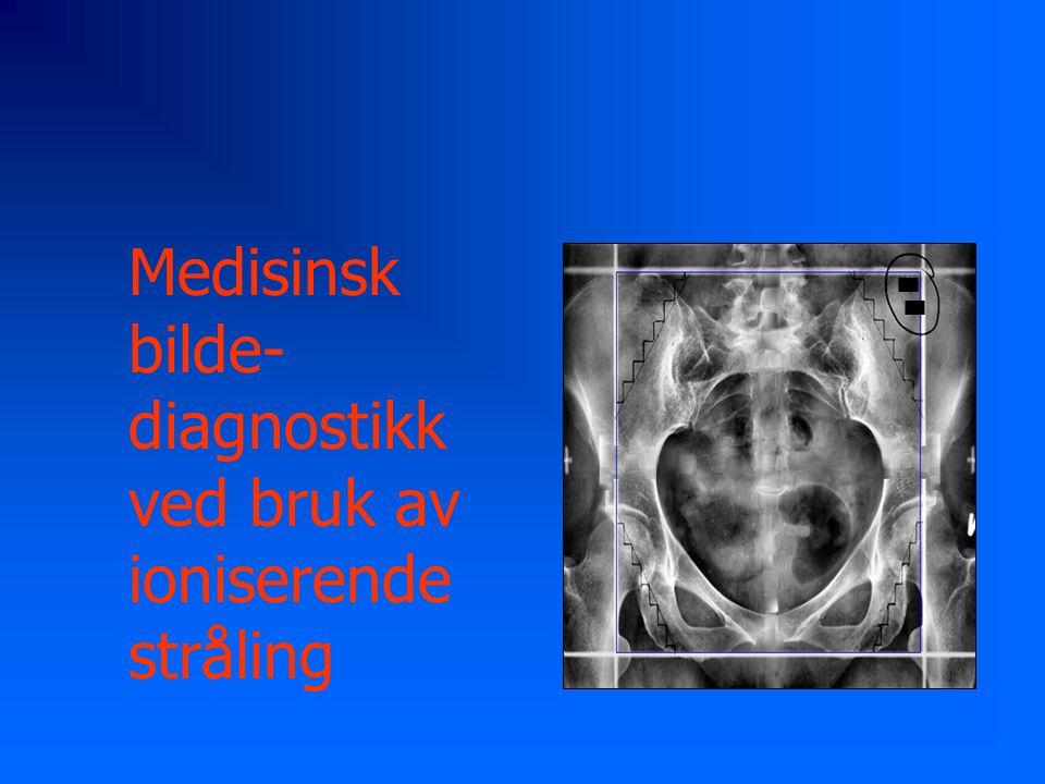 Medisinsk bilde-diagnostikk ved bruk av ioniserende stråling