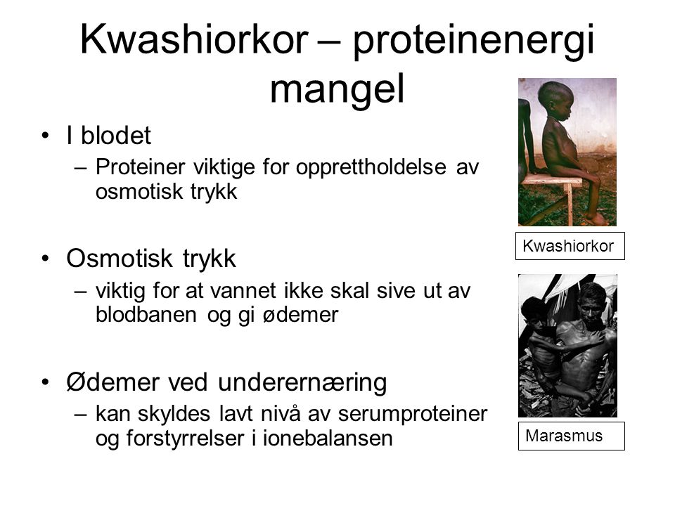 Kwashiorkor – proteinenergi mangel