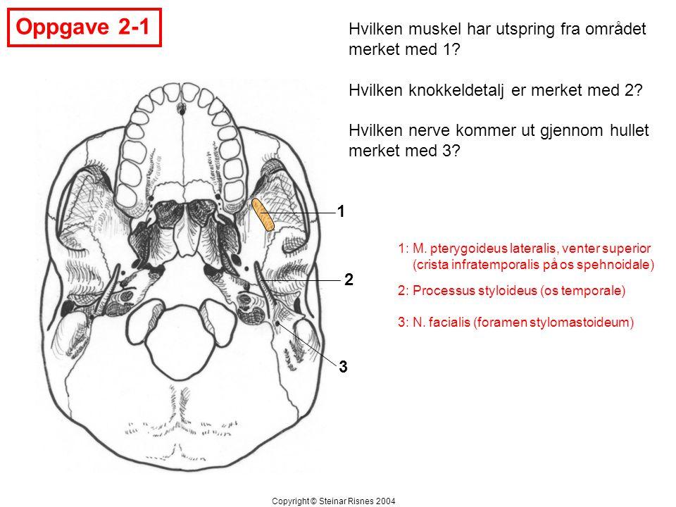Oppgave 2-1 Hvilken muskel har utspring fra området merket med 1