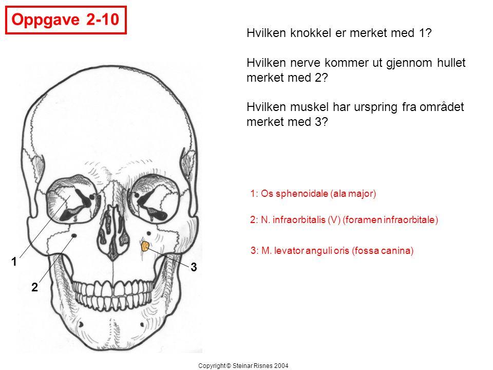 Oppgave 2-10 Hvilken knokkel er merket med 1