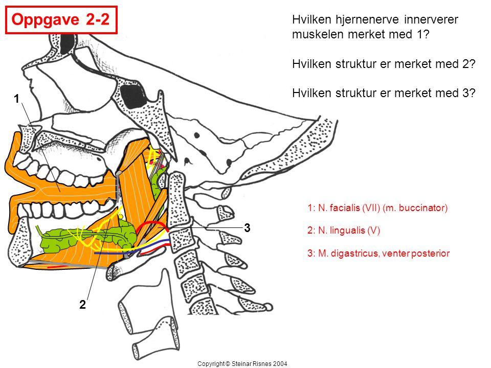 Oppgave 2-2 Hvilken hjernenerve innerverer muskelen merket med 1