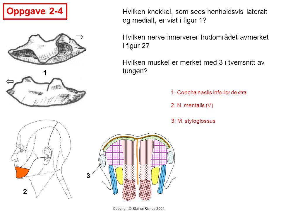 Oppgave 2-4 Hvilken knokkel, som sees henholdsvis lateralt og medialt, er vist i figur 1 Hvilken nerve innerverer hudområdet avmerket i figur 2