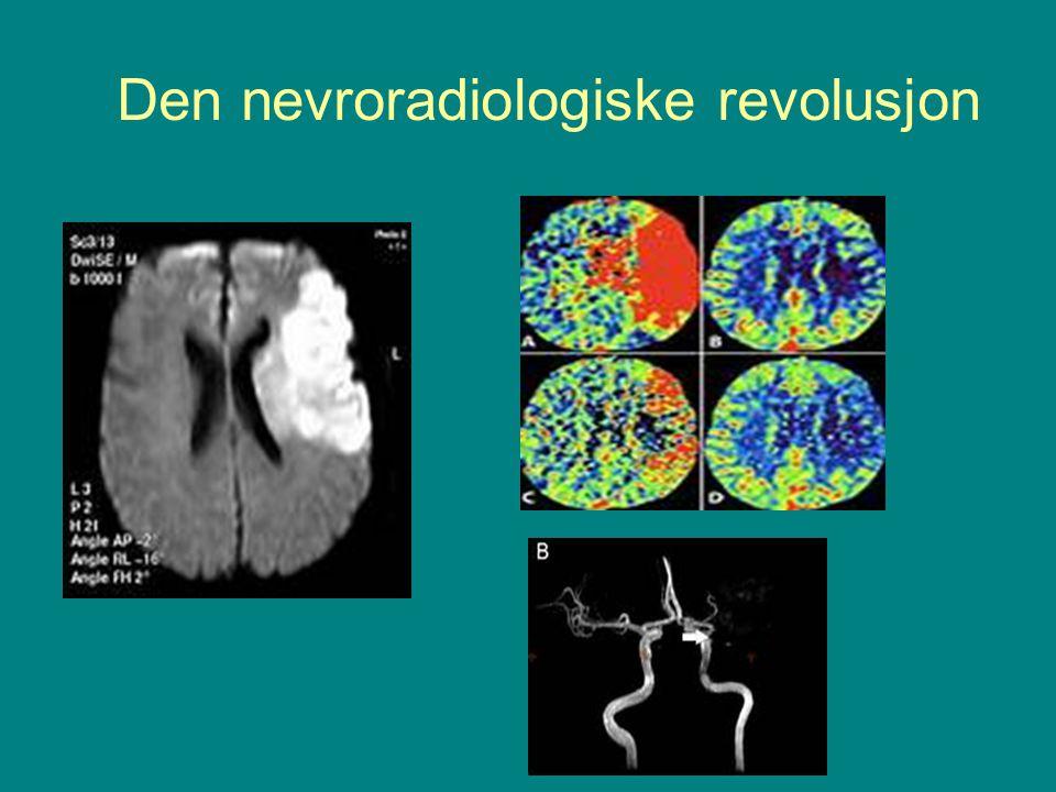 Den nevroradiologiske revolusjon