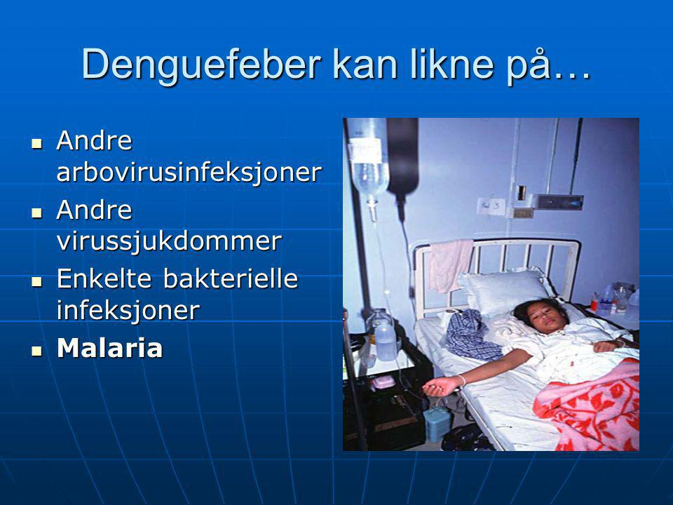Denguefeber kan likne på…