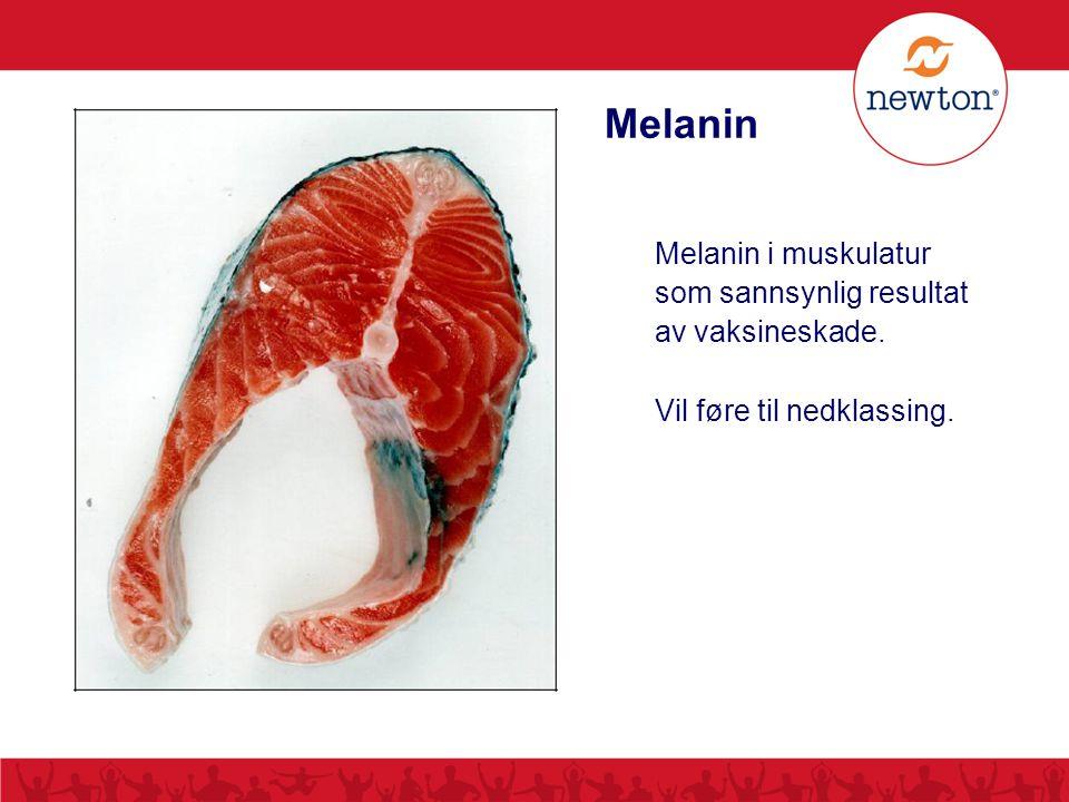 Melanin Melanin i muskulatur som sannsynlig resultat av vaksineskade.