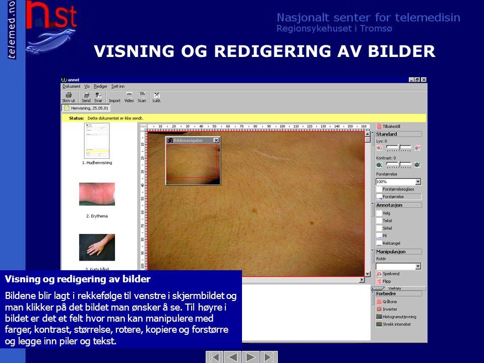 VISNING OG REDIGERING AV BILDER
