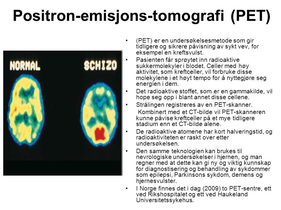 Positron-emisjons-tomografi (PET)