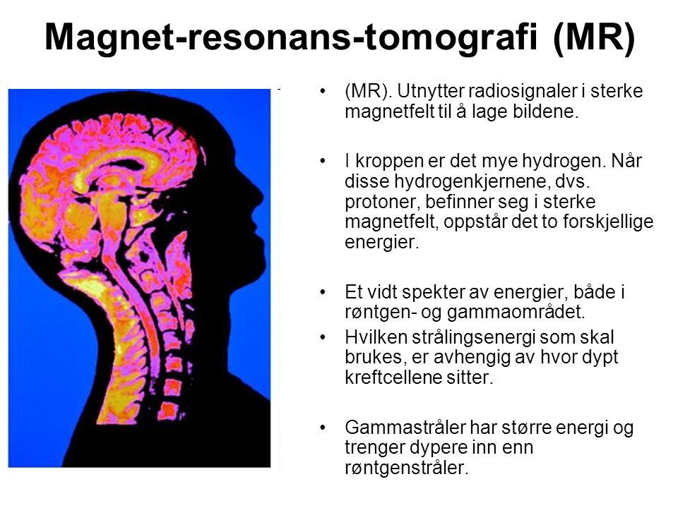 Magnet-resonans-tomografi (MR)