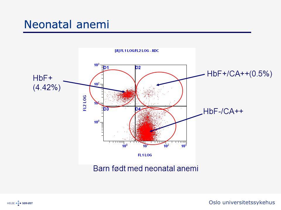 Barn født med neonatal anemi