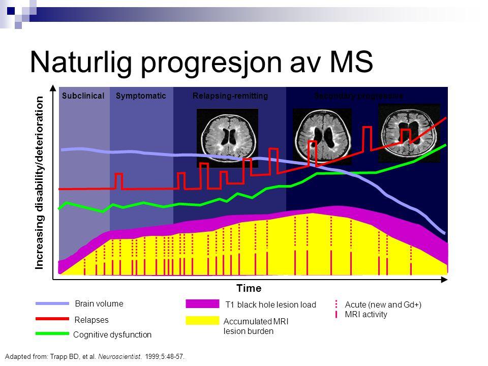 Naturlig progresjon av MS
