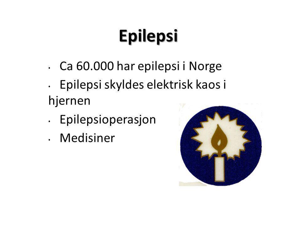 Epilepsi Ca 60.000 har epilepsi i Norge