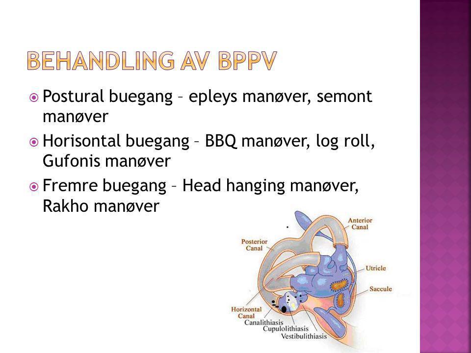 Behandling av BPPV Postural buegang – epleys manøver, semont manøver
