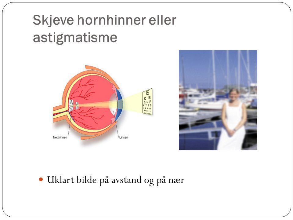 Skjeve hornhinner eller astigmatisme