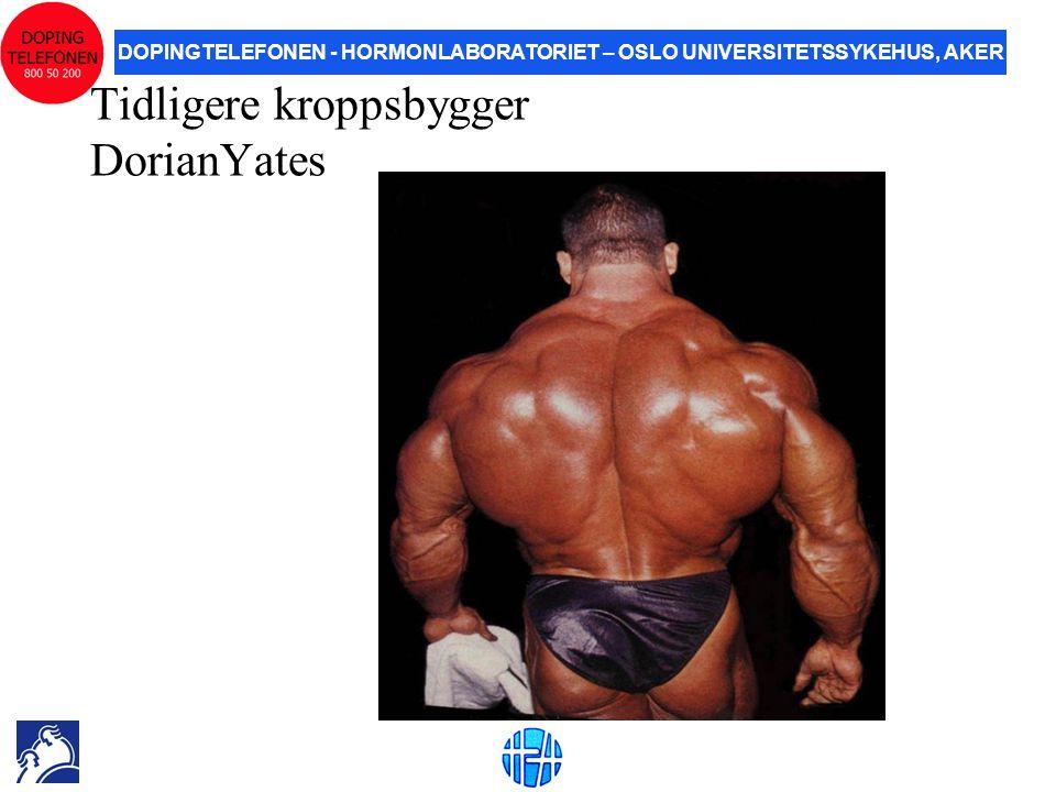 Tidligere kroppsbygger DorianYates