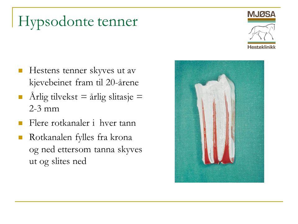 Hypsodonte tenner Hestens tenner skyves ut av kjevebeinet fram til 20-årene. Årlig tilvekst = årlig slitasje = 2-3 mm.