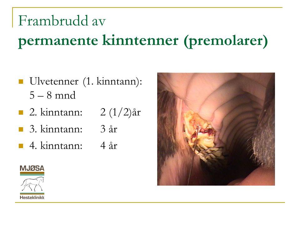 Frambrudd av permanente kinntenner (premolarer)
