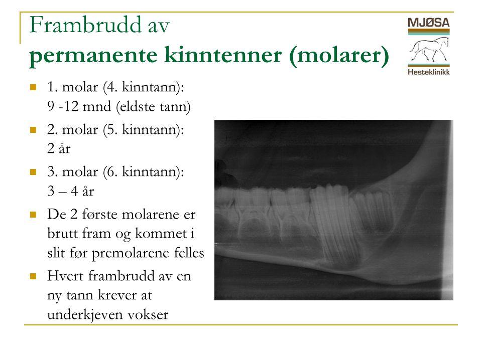 Frambrudd av permanente kinntenner (molarer)