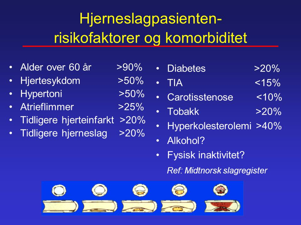 Hjerneslagpasienten- risikofaktorer og komorbiditet