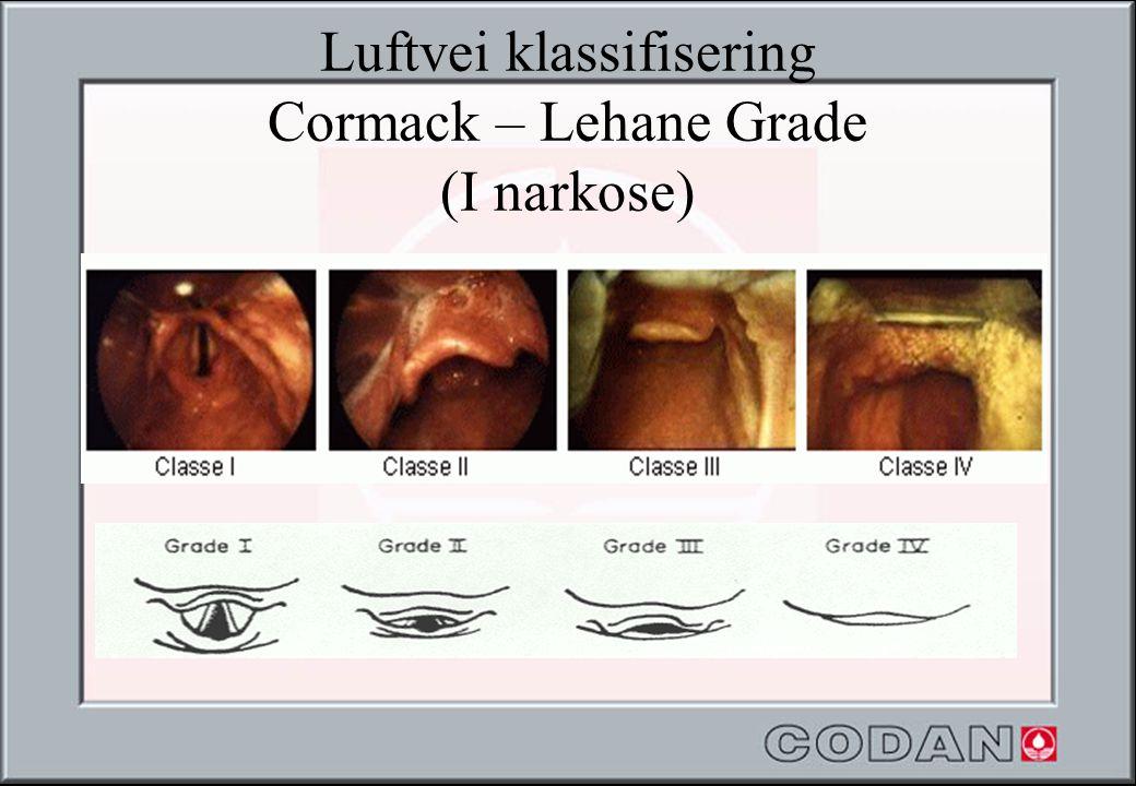Luftvei klassifisering Cormack – Lehane Grade (I narkose)