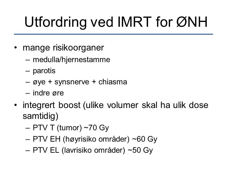 Utfordring ved IMRT for ØNH