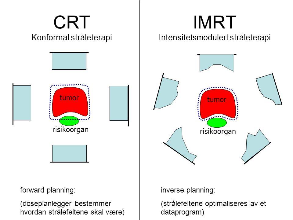 IMRT Intensitetsmodulert stråleterapi