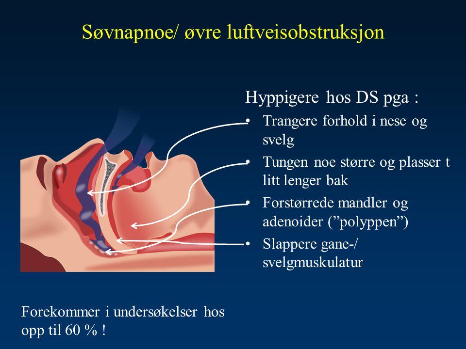 Søvnapnoe/ øvre luftveisobstruksjon
