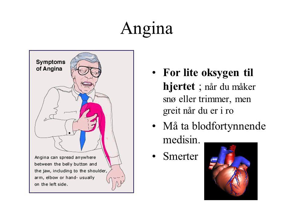 Angina For lite oksygen til hjertet ; når du måker snø eller trimmer, men greit når du er i ro. Må ta blodfortynnende medisin.