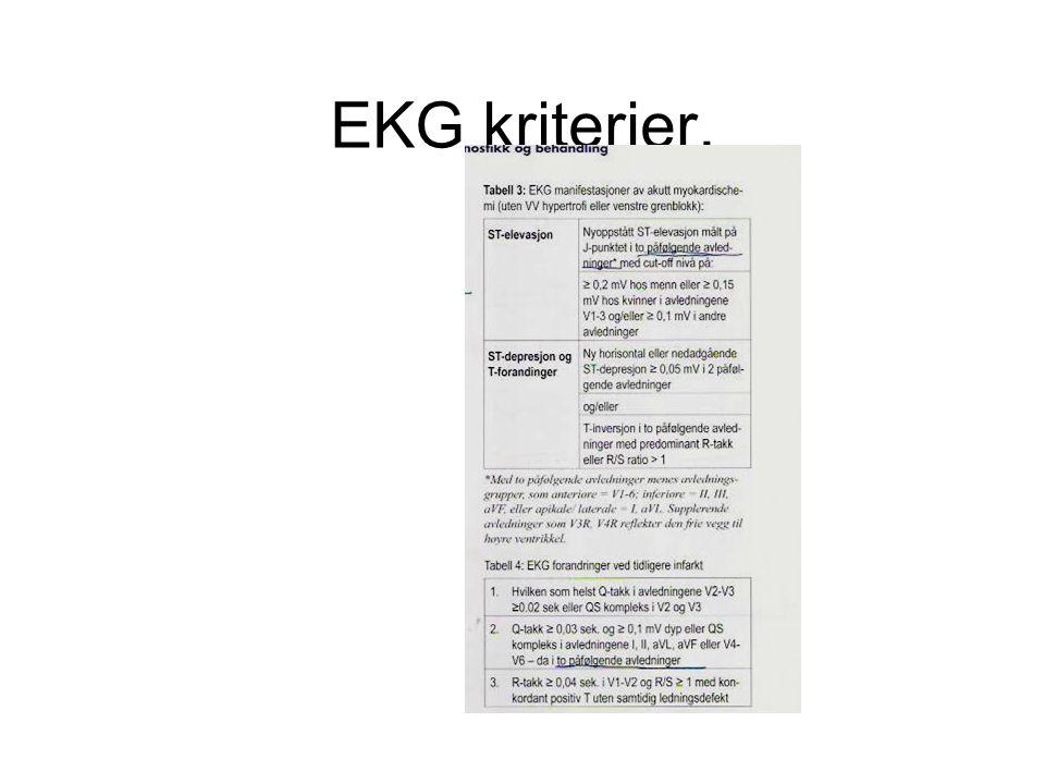 EKG kriterier.