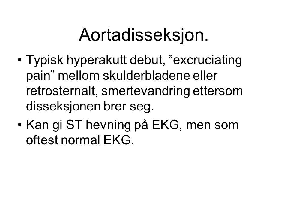Aortadisseksjon.