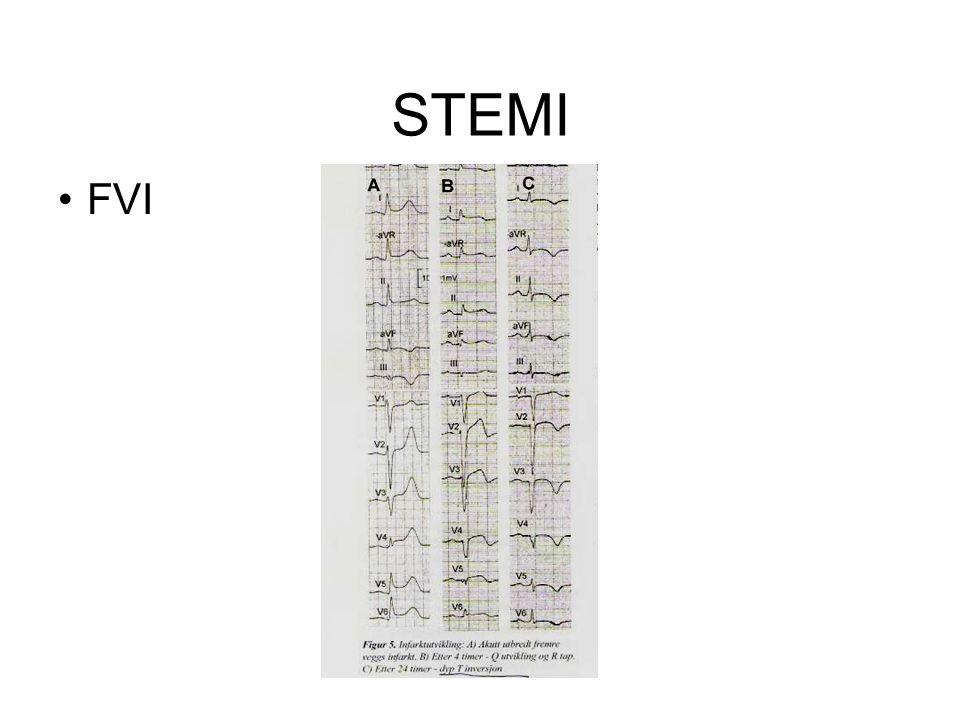 STEMI FVI