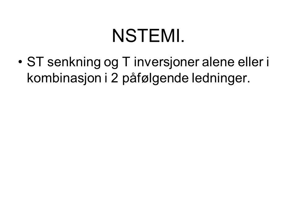 NSTEMI. ST senkning og T inversjoner alene eller i kombinasjon i 2 påfølgende ledninger.