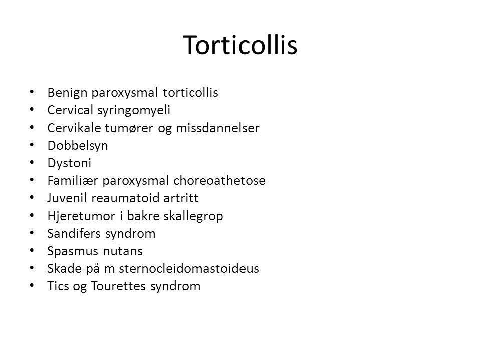Torticollis Benign paroxysmal torticollis Cervical syringomyeli