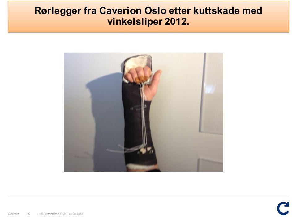 Rørlegger fra Caverion Oslo etter kuttskade med vinkelsliper 2012.