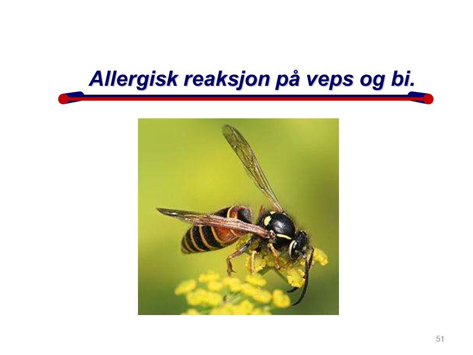 Allergisk reaksjon på veps og bi.