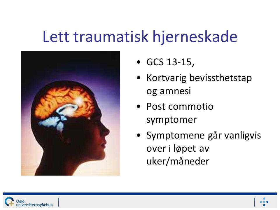 Lett traumatisk hjerneskade