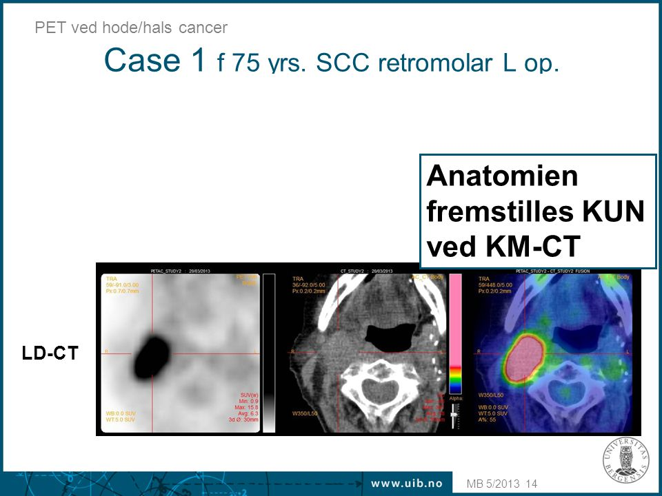 Case 1 f 75 yrs. SCC retromolar L op.