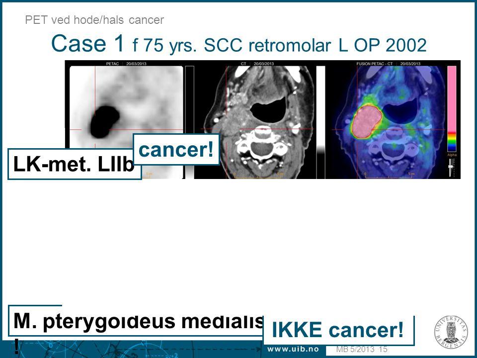 Case 1 f 75 yrs. SCC retromolar L OP 2002