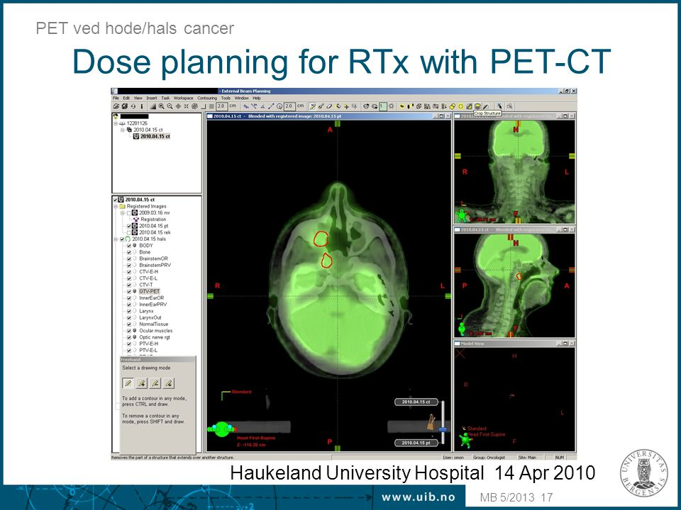 Dose planning for RTx with PET-CT