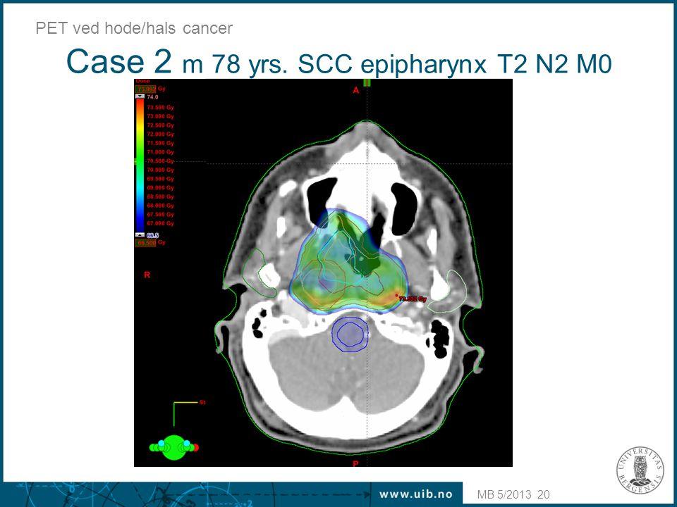 Case 2 m 78 yrs. SCC epipharynx T2 N2 M0